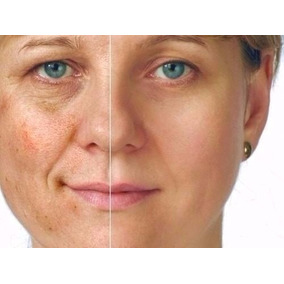 Tira Manchas,acne E Rugas Acido Gricolico