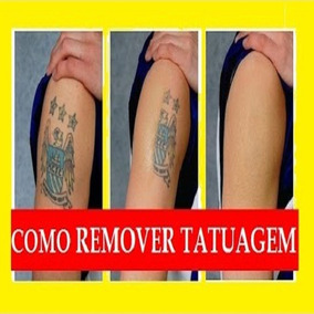[ Método Aprovado] Remova Você Mesmo Suas Tatuagens
