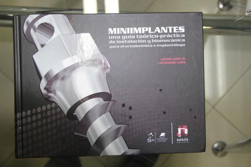 Miniimplantes Para Ortodontistas