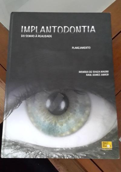 Implantodontia Do Sonho À Realidade