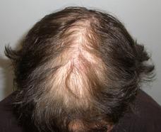 Sistemas Capilares Para Mujeres Con Alopecia O Poco Cabello