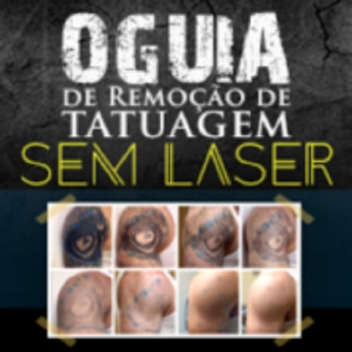 Sem Laser E Sem Dor Método Para Remoção De Tatuagem