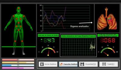 Evaluación General De Salud Con Analizador Cuántico