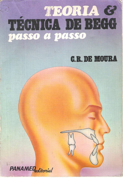 Teoria Técnica De Begg Passo A Passo C.r. De Moura