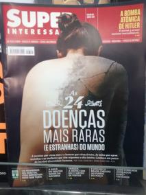 Revista Superinteressante As 24 Doenças Mais Raras Do Mundo