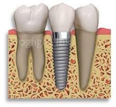 Implantes Dentales Se Aceptan Tarjetas De Credito