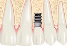 Implantes Dentales-prótesis Completa- 50% Desc.!!! En Cursos