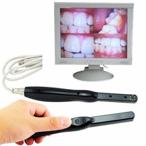 Camera Intra Oral Odontologica Usb 6mp Hd - Superled Blck