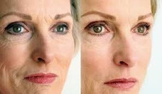 Acido Hialurónico. Botox, Rejuvenecimient Facial, Labios