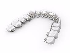 Especialistas En Ortodoncia Lingual, Ortodoncia