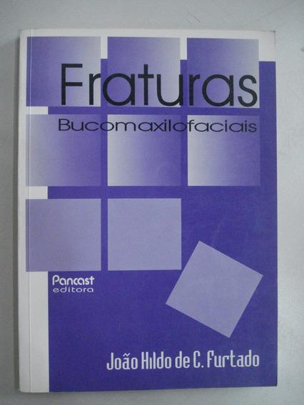 Livro Fraturas Bucomaxilofaciais João Hildo De C Furtado