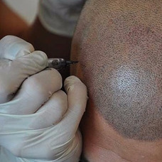 Micropigmentación Para Alopecia Y Cicatrices Para Hombres