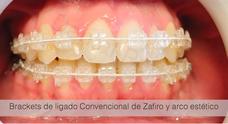 Brackets/ortodoncia Convencional, Lingual Y De Autoligado