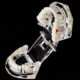 Arcada Dentária Modelo Acrílico Lindo E Transparente Ref.215