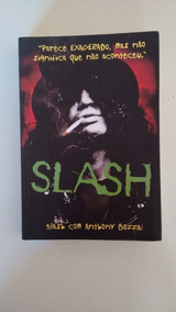 Slash - Biografia Anthonny Bozza - Português