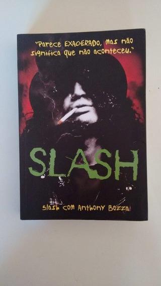 Slash - Biografia Anthonny Bozza - Português