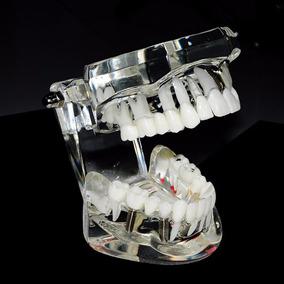 Arcada Dentária Modelo Manequim Odontológico E Brinde Cód215