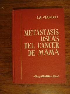 Metástasis Óseas Del Cáncer De Mama - J.a. Viaggio