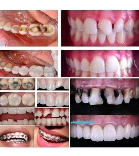 Imagem 1 de 2 de Planos Odontologicos Completos