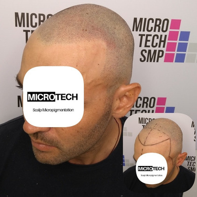 Mícropigmentacion Capilar Profesional