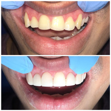 Diseño De Sonrisa, Odontología Estética, Carillas, Resina