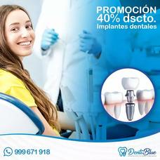 Promocion En Implantes Dentales