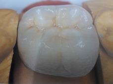 Corona De Porcelana.perno Incluido M.n.25397