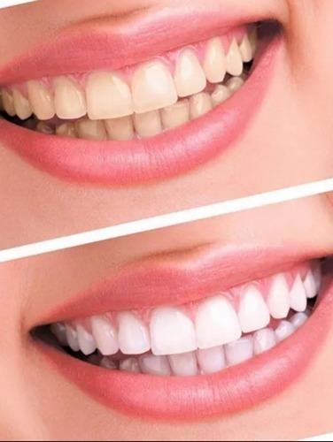 Imagem 1 de 4 de Clareador Dental , O Melhor Do Mercado 10% Confiável.