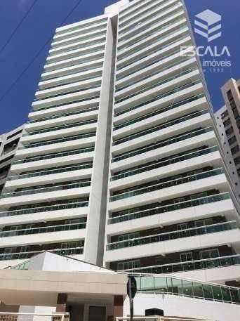 Imagem 1 de 30 de Apartamento Com 3 Quartos À Venda, 104 M², Área De Lazer,2 Vagas, Financia - Cocó - Fortaleza/ce - Ap0335