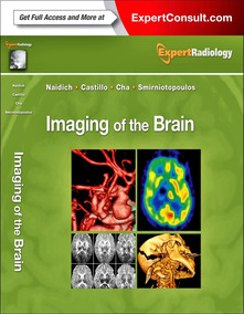 Imaging Of The Brain: Expert Radiology Series