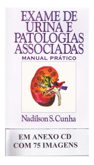 Livro Exame De Urina E Patologias Associadas + Cd 75 Imagens