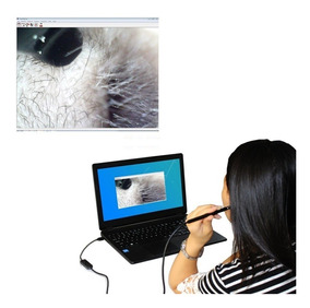 Limpeza Ouvido Cera Kit Seringa Adaptada + Câmera Endoscopio