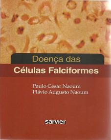 Doença Das Células Falciformes - Novo
