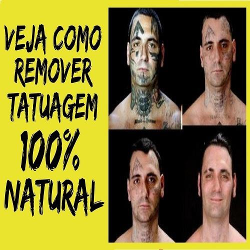 Método Caseiro Para Remoção De Tatuagem