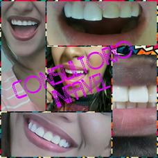 Ortodoncia.. Diseño De Sonrisa
