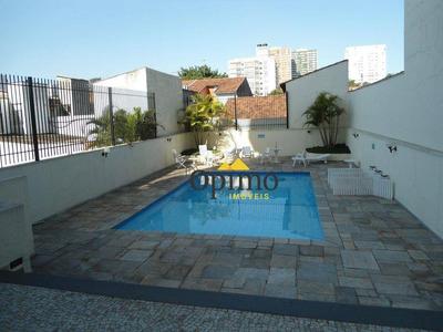 Apartamento Residencial Para Venda E Locação, Chácara Santo Antônio (zona Sul), São Paulo. - Ap0123