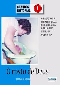 Livro Rosto De Deus Microcefalia Paralisia Epilepsia Down