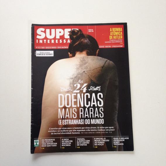 Revista Super Interessante As 24 Doenças Mais Raras N°361