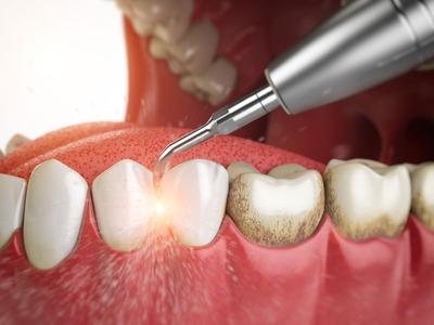 Limpieza Dental Ultrasonica - Torres Dental Odontología