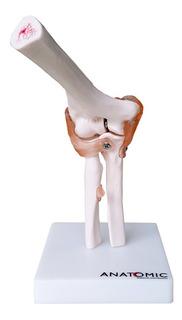 Cotovelo Modelo Anatomico Com Articulação E Ligamentos