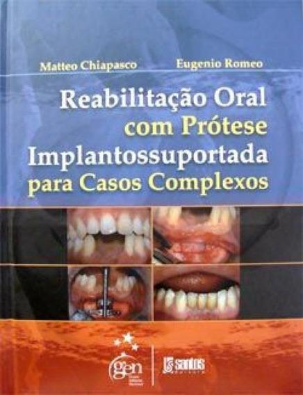 Reabilitacao Oral Com Protese Implantossuportada