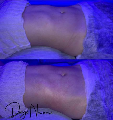 Imagem 1 de 4 de Massagens - Linfática, Massofilaxia, Modeladora.