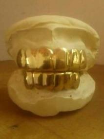 Grillz De Ouro Maciço E Prata Maciça