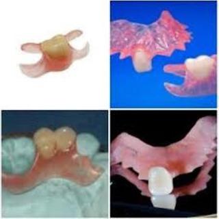 Prótesis Flexibles/acrílico/placas/mecánica Dental S/ Envío