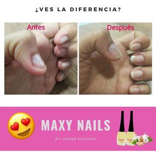Tratamiento Para Hacer Crecer Las Uñas - Maxy Nails