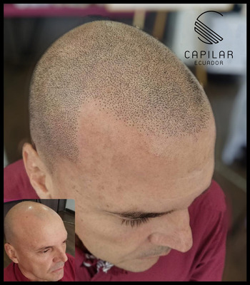 Capilar Barba Alopecia Tricopigmentacion Micropigmentacion