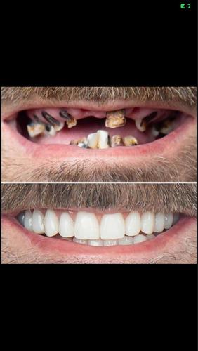 Tratamento Odontológico Campinas