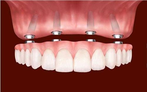 Implante Dentário - Protocolo