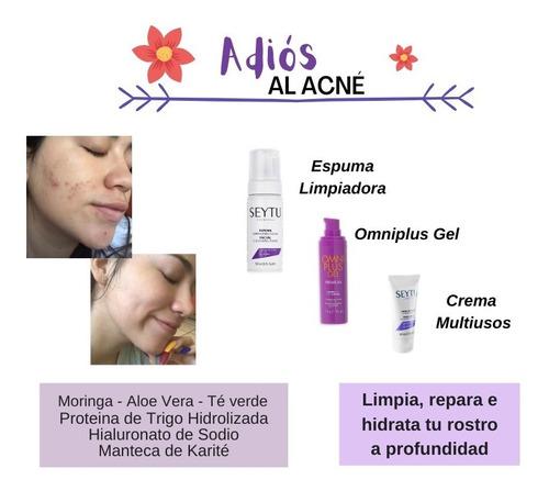 Kit Anti-acné Seytú - L a $236