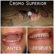 Mecánico Dental (prótesis Dentales) Consultorio, Domicilio.